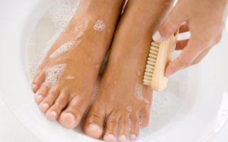 Бородавки на пальцах ног — причины с фото и как убрать