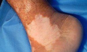 Белые пятна на ногах — все причины с фото и как лечить