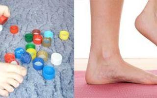 Отекают ступни ног — все 4 причины с фото и как избавится от отеков