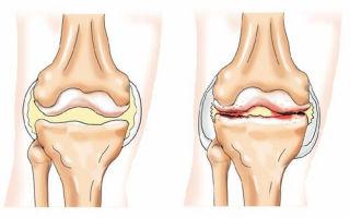 Шарик в коленном суставе — фото, причины и как убрать