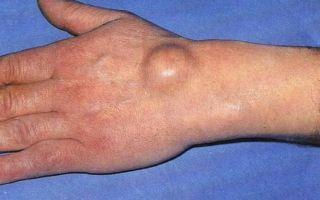 Шишка на запястье руки с внутренней стороны — фото и причины