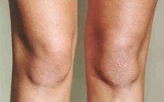 Сухая кожа на коленях — причины и фото почему появляются