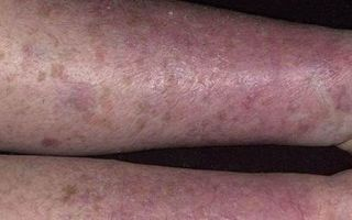 Сохнет кожа на ногах — все причины с фото и как лечить