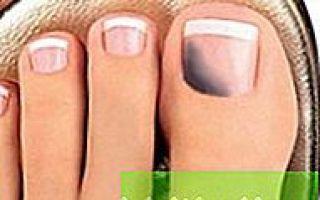 Почернел ноготь на ноге — причины с фото и как избавится