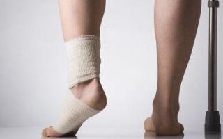 Разрыв связок голеностопа — как определить, и какая нужна реабилитация