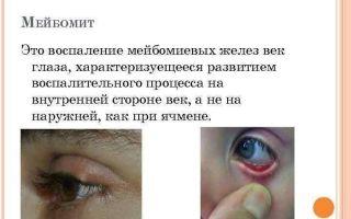 Прыщи на веке глаза — фото, причины, болезни и лечеине