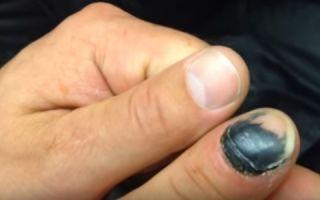 Почему посинел палец на ноге? не знаете что делать? мы знаем