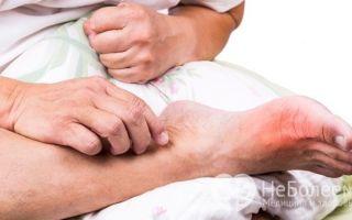 Почему опухают ноги внизу — все 4 причины и что делать