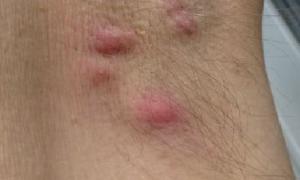 Шишка под мышкой — фото, все причины и лечение