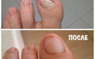 Причины желтых ногтей на ногах и на пальцах ног, главная причина …