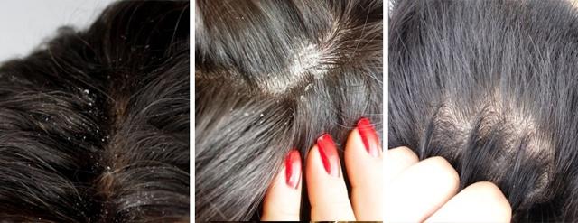 Шелушение кожи головы - все причины с фото и что делать