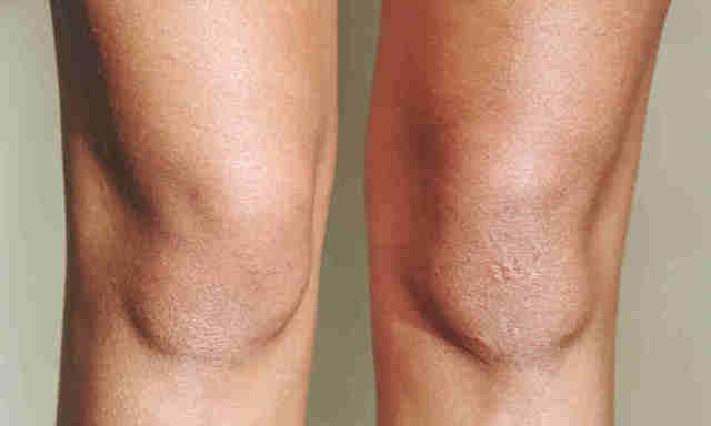 Сухая кожа на коленях - причины и фото почему появляются