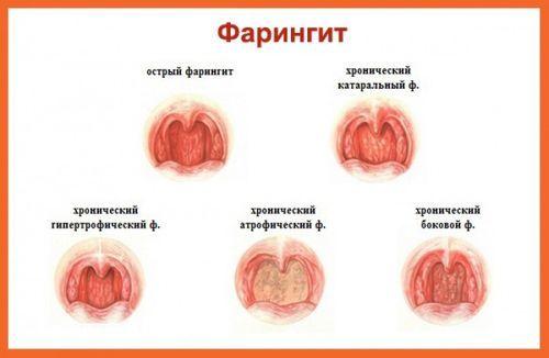 Прыщи в горле на задней или передней стенке: фото и причины