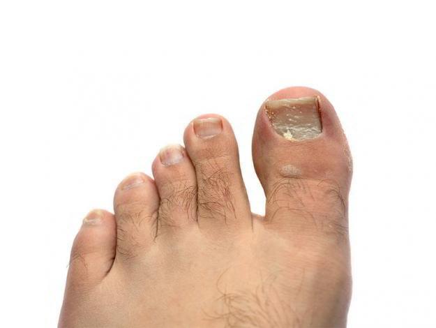 Отвалился ноготь на ноге - причины с фото и что делать