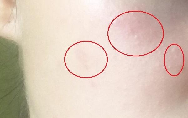 Ихтиоловая мазь от прыщей - фото до и после и как ноносить