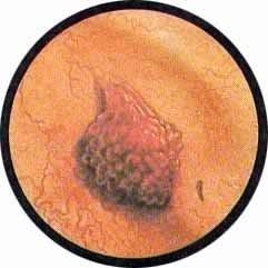 Папиллома мочевого пузыря у мужчин и у женщин, причины с фото и как удалить