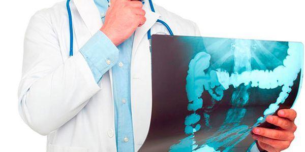 Анальные трещины, фото, причины, как лечить анальную трещину