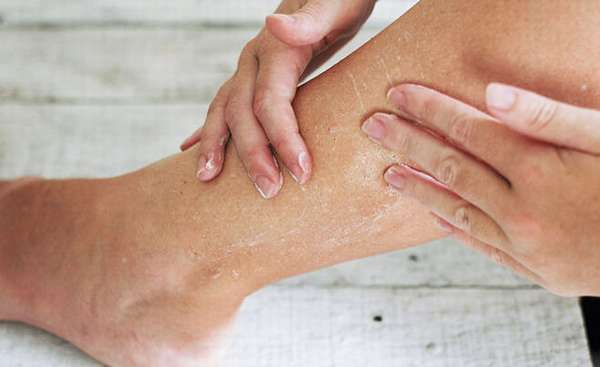 Пигментные пятна на ногах у мужчин и женщин - что делать?