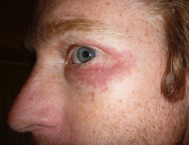 Покраснение кожи вокруг глаз - найден способ как убрать