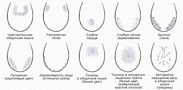 Почему язык в трещинах, что это значит? Все причины и фото