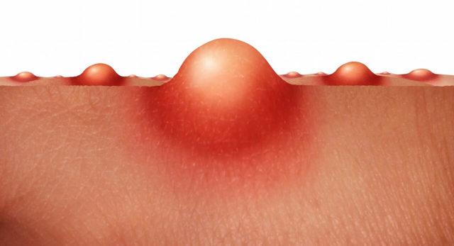 Прыщ на анусе: виды (белый, гнойный), причины, симптомы и лечение