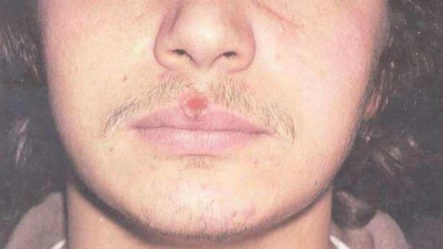 Шишка на губе - что это такое? Причины с фото и лечение