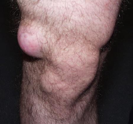 Появилась шишка на колене? Все причины с фото и как убрать