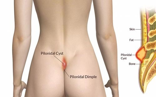 Шишка на копчике у мужчин или женщин, все причины с фото и лечение