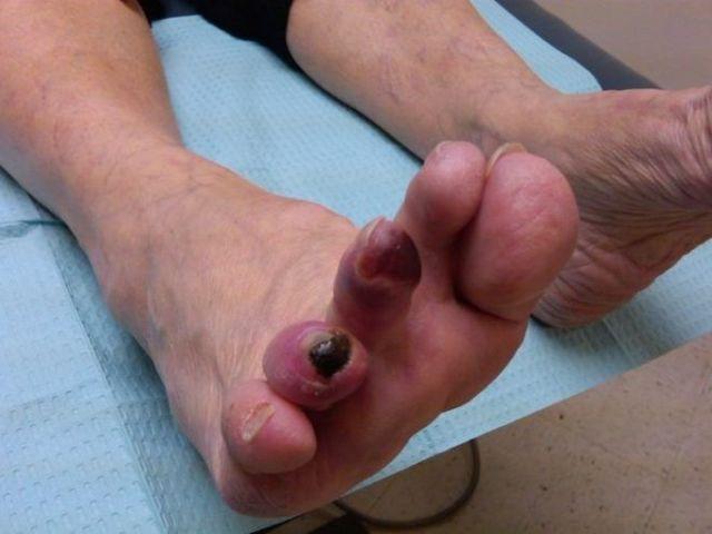 Загноилась мозоль на ноге - причины с фото и что делать