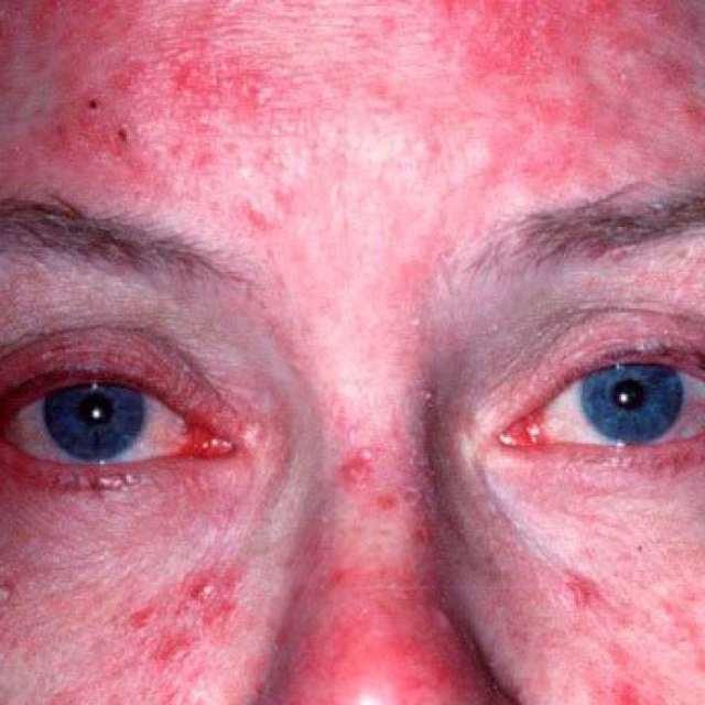 Розацеа на лице, фото, причины, симптомы и лечение