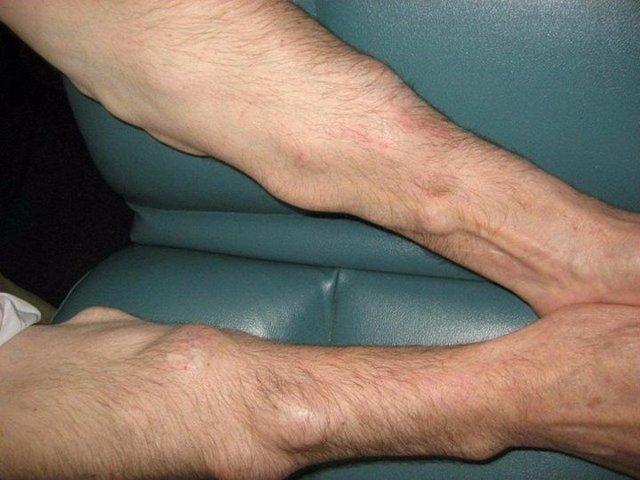 Уплотнение на ноге под кожей (шишка на ноге), фото и причины