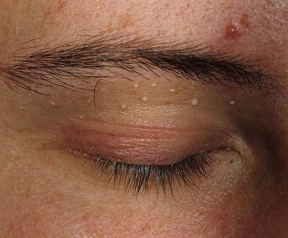 Почему чешутся прыщи на лице? Что делать и чем лечить