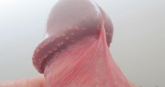 Перламутровые папулы на головке члена у мужчин, все причины