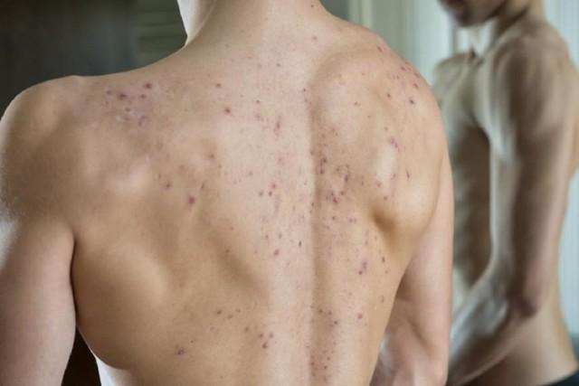 Прыщи на плечах: фото,  причины у мужчин и женщин и лечение