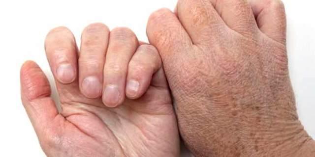 Белые пятна на ногтях рук - что это означает? Все причины.