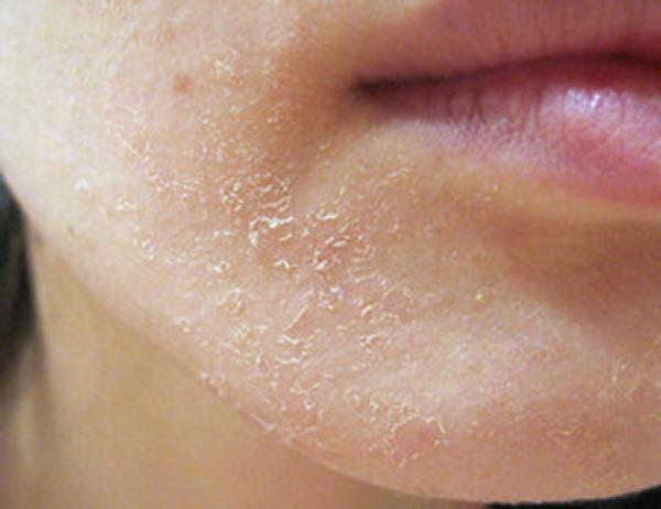 Дегтярное мыло от прыщей - способы применения и отзывы
