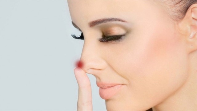 Прыщи на носу: фото, причины и как избавится