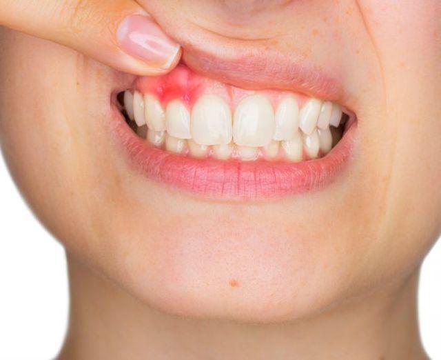 Чем полоскать рот при флюсе в домашних условиях