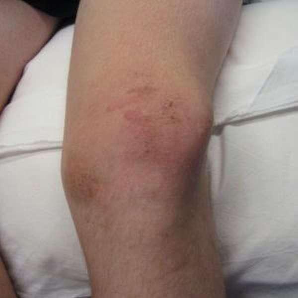 Синяк на колене: фото, причины и как избавится