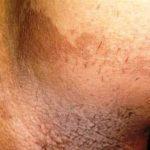 Эритразма в паху и в паховых складках, фото, причины и лечение
