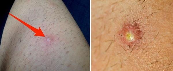 Шарик на ноге под кожей: все причины с фото и как убрать