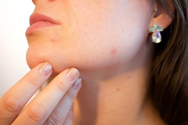 Аллергическая сыпь на лице: фото, причины и как убрать прыщи
