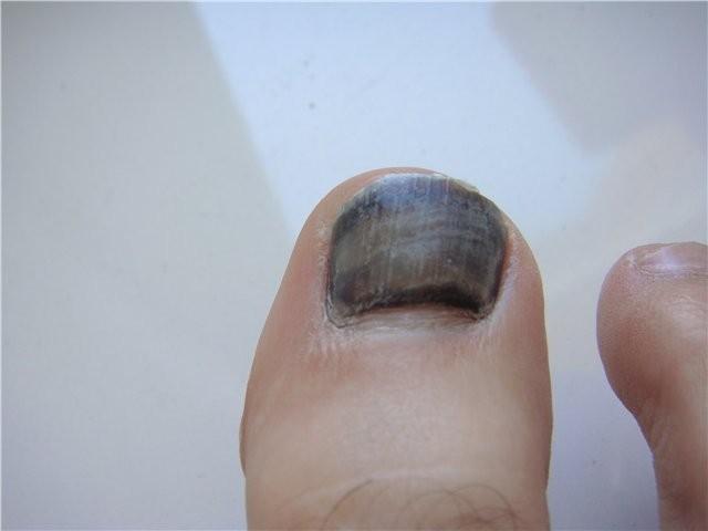 Почернел ноготь на ноге - причины с фото и как избавится