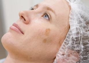 Удаление пигментных пятен на лице - все способы и где заказать