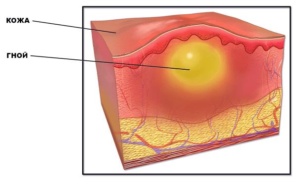 Шишки от уколов на ягодицах - фото, причины и как избавиться