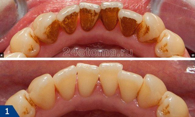 Удаление зубного камня ультразвуком - отзывы, и больно или нет?