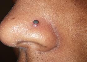 Шишки в носу - это может быть? Причины с фото и лечение