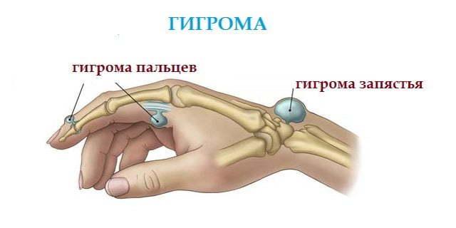 Шишка на пальце руки, причины нароста на фаланге с фото
