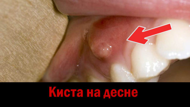 Прыщи на деснах во рту: виды, 14 причин с фото, и лечения