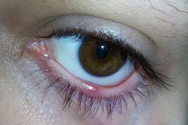 Прыщи на веке глаза - фото, причины, болезни и лечеине